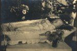 Anonymous, Postmortem of a Russian child